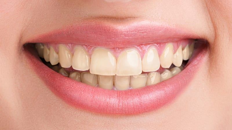 Express relieve toothache today at our bangkok dental Network 1